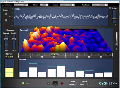 Neurofeedback Egyesület - ILF screen